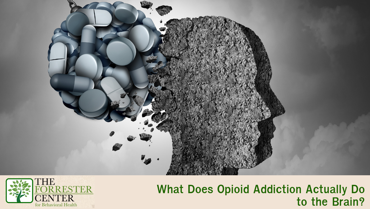 What Does Opioid Addiction Actually Do to the Brain?